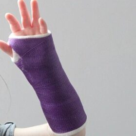 San Diego – When Your Child Breaks a Bone After Hours