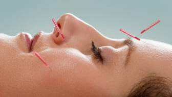 Why You Should Have Acupuncture Before & During Pregnancy